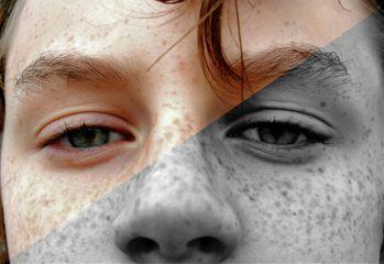 halfandhalf blackandwhite eyes freckles brother