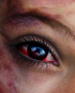 freetoedit eyeedit bruised battered bloodshot