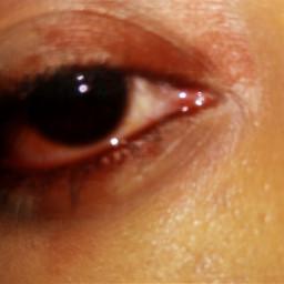 bloodeyes arianagrande billieeilish eyecloseup sweetener pcbeautifulbirthmarks dcfamilyportraits echumananimalhybrid ircfanartofkai