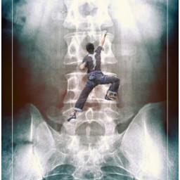 papicks freetoedit spine vertebrae crawling