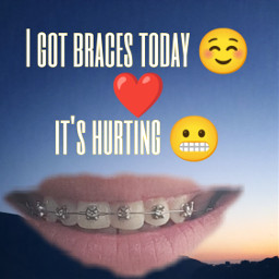 braces freetoedit